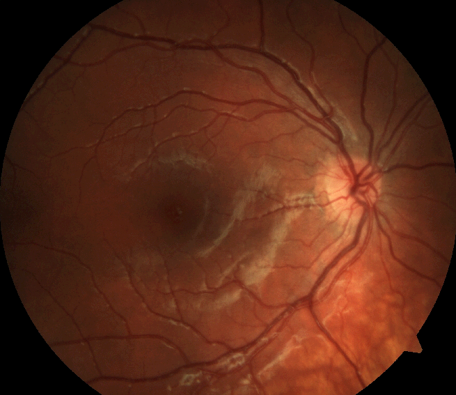 Sclopetaria Vitreoretinal Research Group Acute Idiopathic Maculopathy