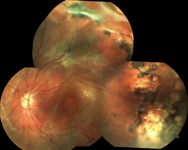 Familial Exudative Vitreoretinopathy